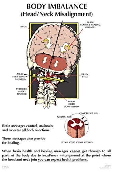 Chiropractic Troy MI Nucca Body Imbalance