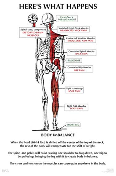 Chiropractic Troy MI Nucca What Happens